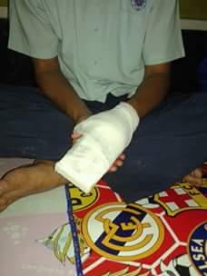 Tangan kiri Munjani mesti dioperasi karena patah tulang*